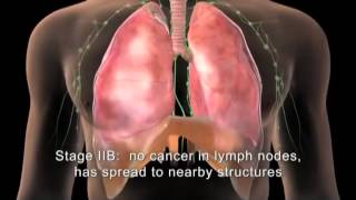 LUNG CANCER - CANCRO DEL POLMONE