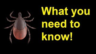 What you need to know about ticks and lyme disease