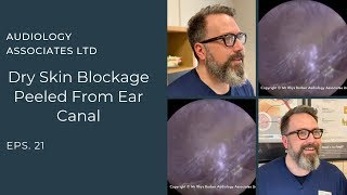 DRY SKIN BLOCKAGE PEELED FROM EAR CANAL  - Ep 21