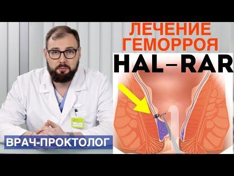 Лечение геморроя методом Hal-Rar - дезартеризация геморроидальных узлов. Лечение за 1 день | колопротколог | колопроктолог | колоноскопия | проктология | проктолог | геморроя | геморрой | лечение | хирург | лечить