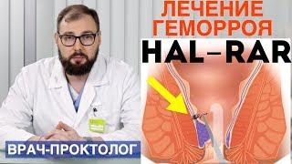 Лечение геморроя методом Hal-Rar - дезартеризация геморроидальных узлов. Лечение за 1 день