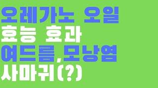 오레가노 오일 효능효과 여드름 모낭염 그리고 사마귀(?…