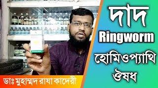 দাদ রোগ থেকে মুক্তির উপায় হোমিওপ্যাথি চিকিৎসায় | Ringworm homeopathy treatment in bangla