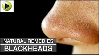Skin Care - Blackheads - Natural Ayurvedic Home Remedies