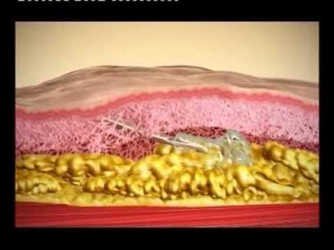שיטת ליפו ליפט לשאיבת שומן – פרופ' אייל וינקלר