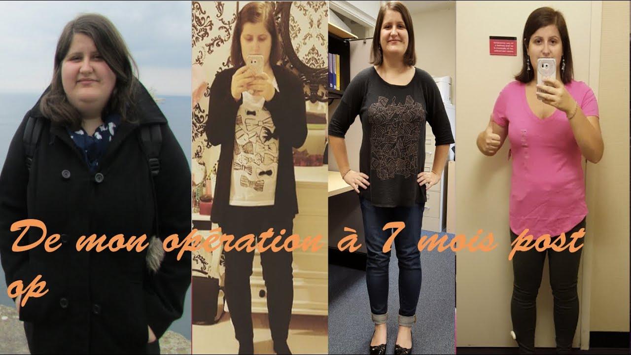 Ma sleeve 2 de l 39 op ration 7 mois post op - Operation couper l estomac pour maigrir ...