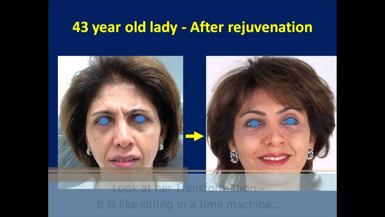 Botox Treatment In Mumbai Best Botox Injection Cost Clinics In India The Esthetic Clinics