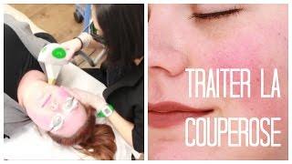 Traiter la couperose: Ma 1re séance de photofacial à la Clinique Skins / 2FillesOrdinaires
