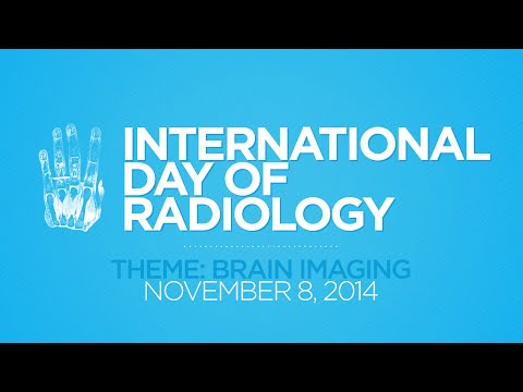 IDoR 2014 - ECR On Demand: E³ 1220 'Pitfalls in brain imaging' (A-332, L. van den Hauwe)