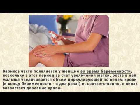 От чего появляется варикоз на ногах у женщин