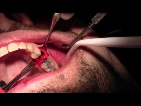 Extraction #13 with Simple Socket Bone Grafting
