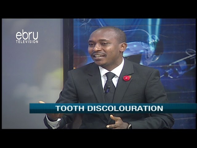 Tooth Discoloration Causes & Treatment Options