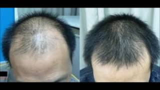 Hair Loss Due To Metabolism - Hair Loss Remedy With Aloe Vera