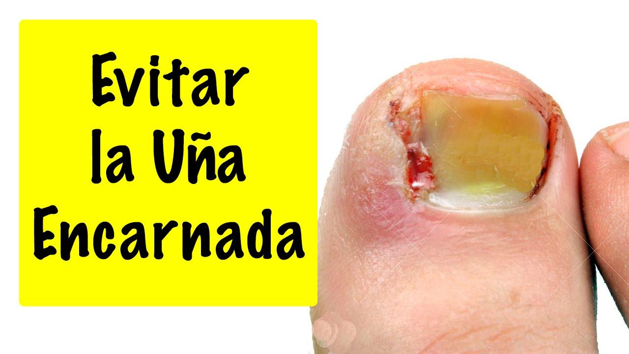 El pus bajo la uña sobre el pulgar del pie el tratamiento