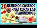 Como curar las hemorroides con 20 Remedios Caseros  Hemorroides Internas y Externas