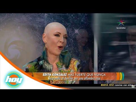 Edith González enfrenta al cáncer con actitud  Hoy