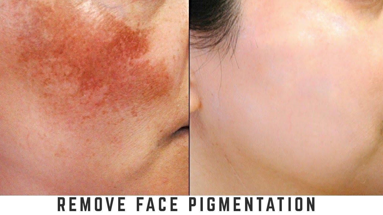 remove pigmentation fast