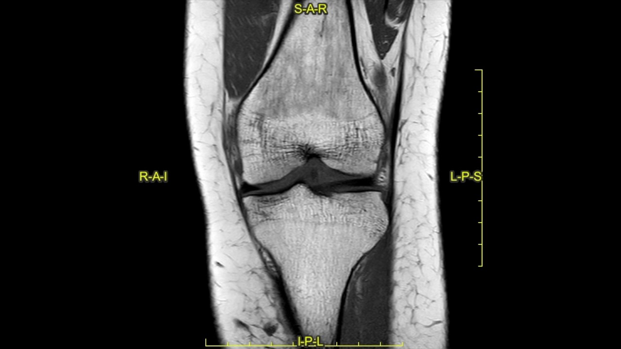 Posterolateral corner injury of the knee complete mri examination posterolateral corner injury of the knee complete mri examination ccuart Images