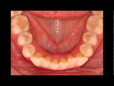 dientes temporales y permanentes diferencias