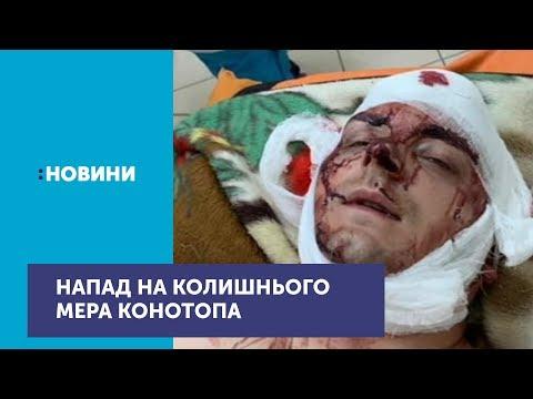 На Сумщині жорстоко побили екс-мера Конотопа Артема Семеніхіна