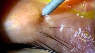 Dry Eye Syndrome; Silicon Punctal Plug insertion