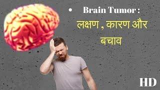 ये लक्षण नजर आए तो समझो ब्रेन ट्यूमर है || brain tumor symptoms || brain tumor symptoms and cure hd screenshot 5