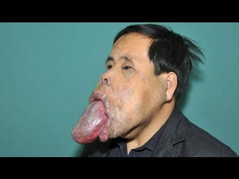 man with a huge tongue youtube
