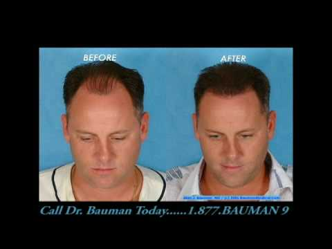Feriduni Hair Clinic Deutsch Doovi