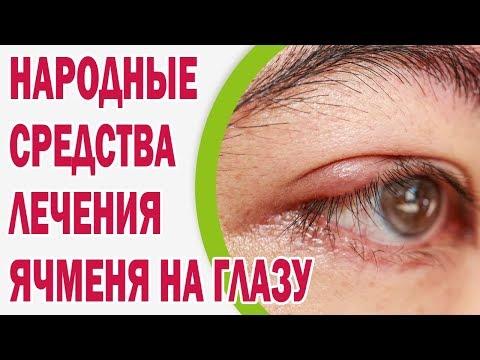 Ячмень на глазу - быстрое лечение народными средствами
