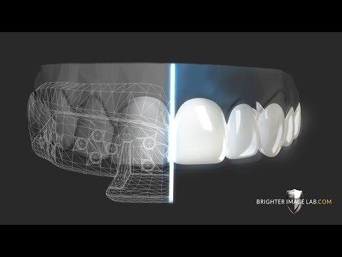 diy--how-to-get-dental-veneers-online-with-no-dentist!