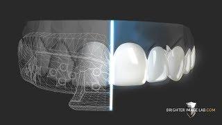 DIY- How to Get Dental Veneers Online with No Dentist!
