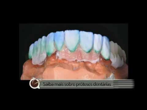Prótese dento gengival