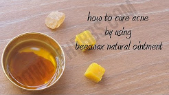 hqdefault - How To Use Beeswax For Acne