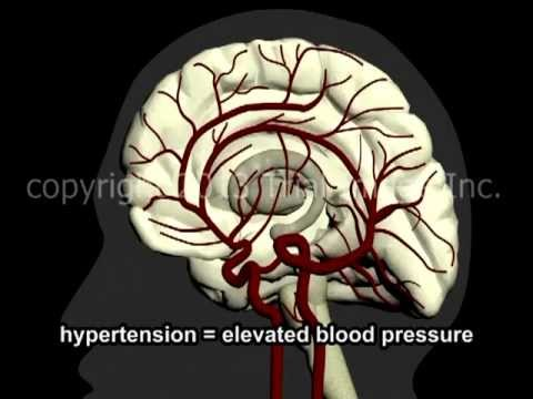 What Is A Stroke? - Narration and Animation by Dr. Cal Shipley, M.D.