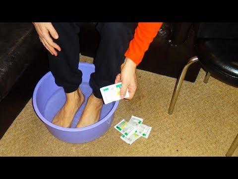 Вылечить грибок ногтей на ногах