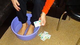 видео Лечение грибка ногтей народными средствами