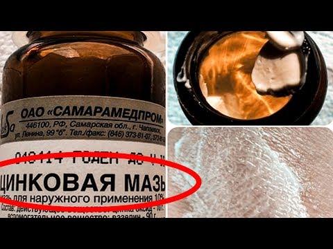 Вот почему стоит иметь хотя бы одну тубу в домашней аптечке. Мазь цинка – копеечное чудо для кожи.