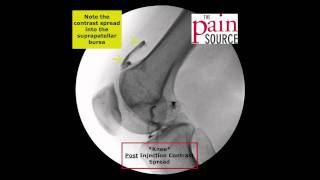 Knee Injection under Fluoroscopy  - ThePainSource.com