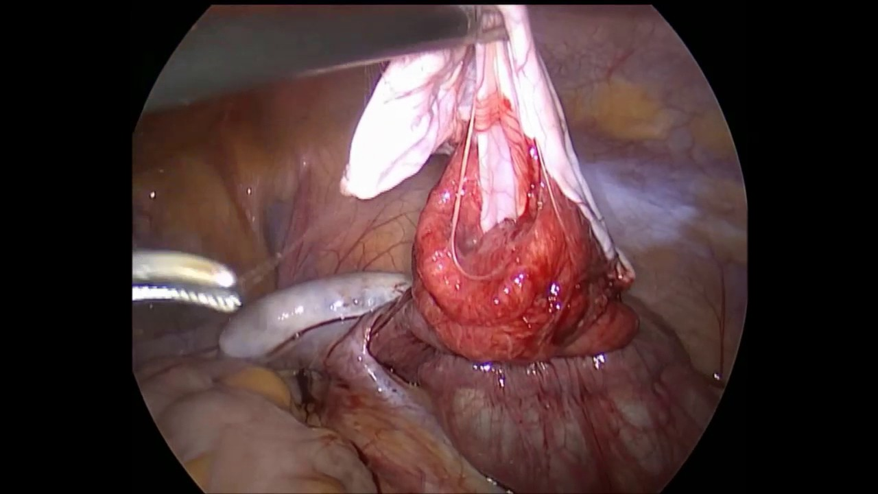 Puncture of the ovarian cyst