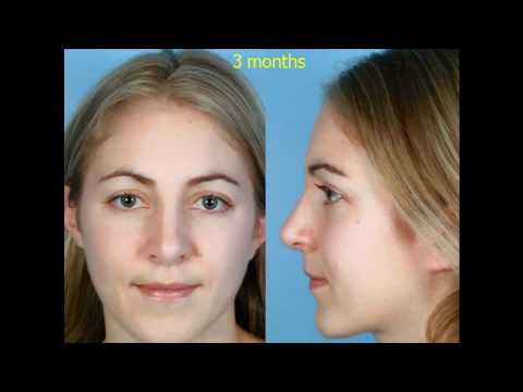 Rhinoplasty - The Structural Approach to Rhinoplasty - Part 5