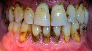 видео Зубной камень