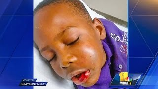 Teacher Breaks Jaw Of 'Disruptive' 7-Year-Old Student
