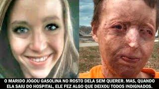 O marido jogou gasolina no rosto dela sem querer. Mas, quando ela saiu do hospital...