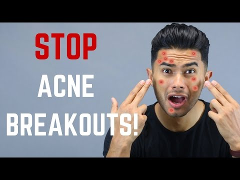 hqdefault - Pomade Acne Is Caused By