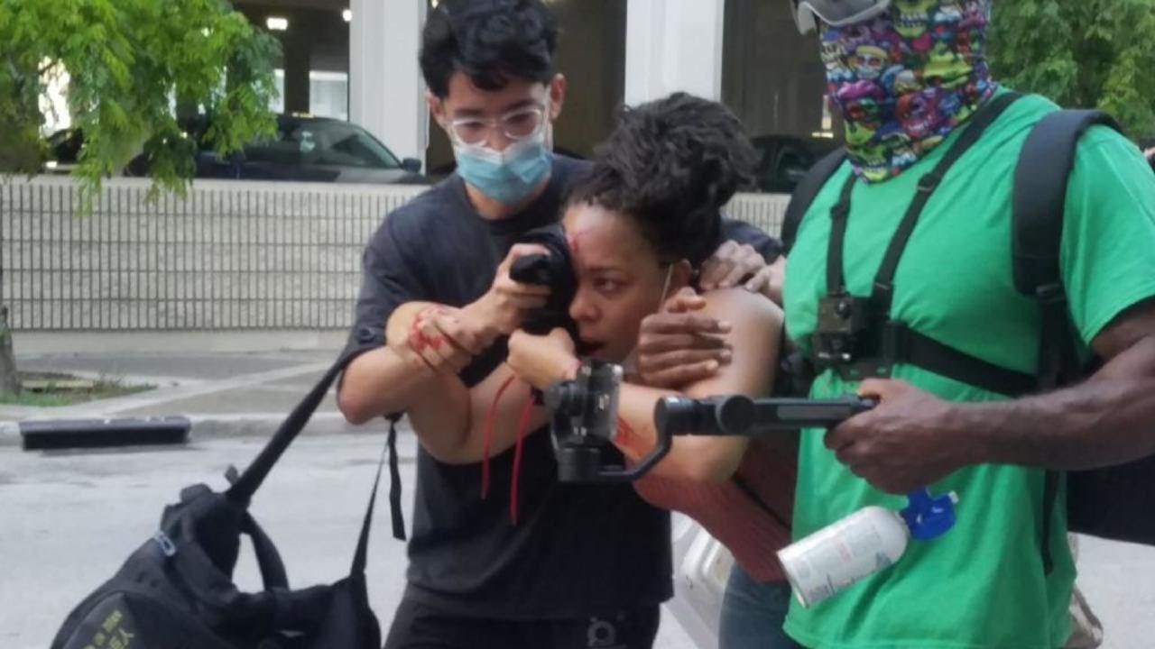 Florida Female Protestor Shot In The Eye By Police With Rubber Bullet [VIDEO]