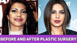 Plastic Surgery से पहले और बाद की 10 बॉलीवुड अभिनेत्रियाँ | 10 Actresses Before and After Surgery