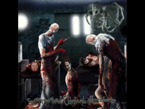 Aborted Fetus - Goresoaked Clinical Accident
