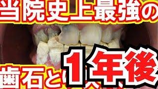 当院史上最強の歯石とり映像ー1年後ー歯石除去Vol.3.2(我院有史以來最厲害的去牙石 Tartar)