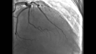 Coronarios vasos enfermedad tres de