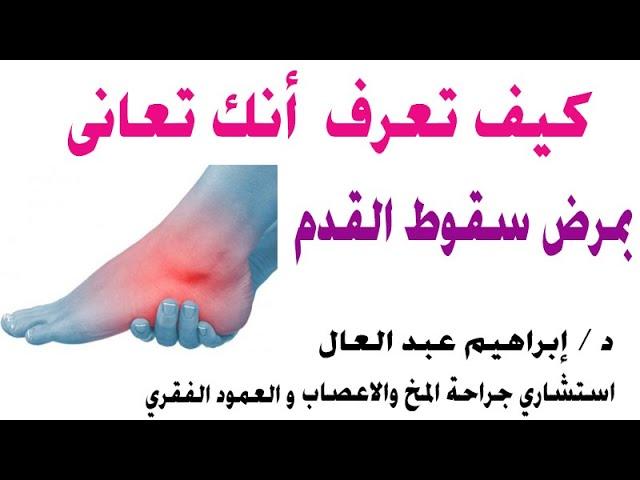 كيف تعرف انك تعانى بمرض سقوط القدم مع الدكتور ابراهيم عبد العال استشارى جراحة المخ والاعصاب Youtube